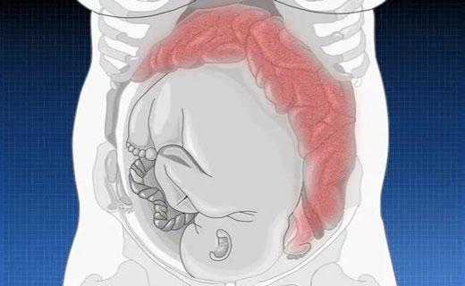 боли кишечника у беременной