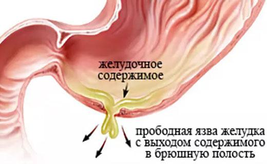 перитонит внутренних органов