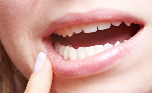 болит рот