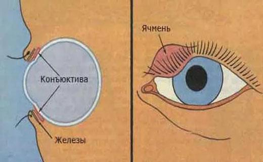 причины боли глаза